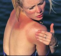 Pericolele arsurilor solare